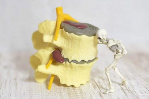 椎間板ヘルニアの骨の模型