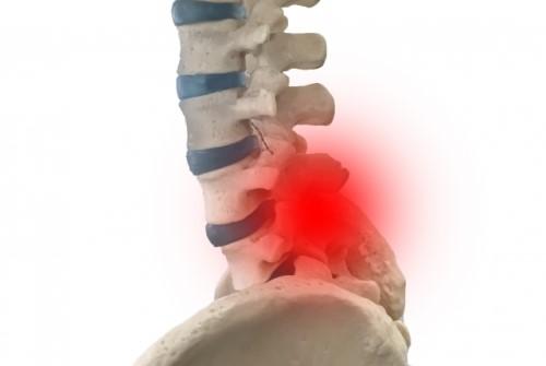 腰痛の骨の模型